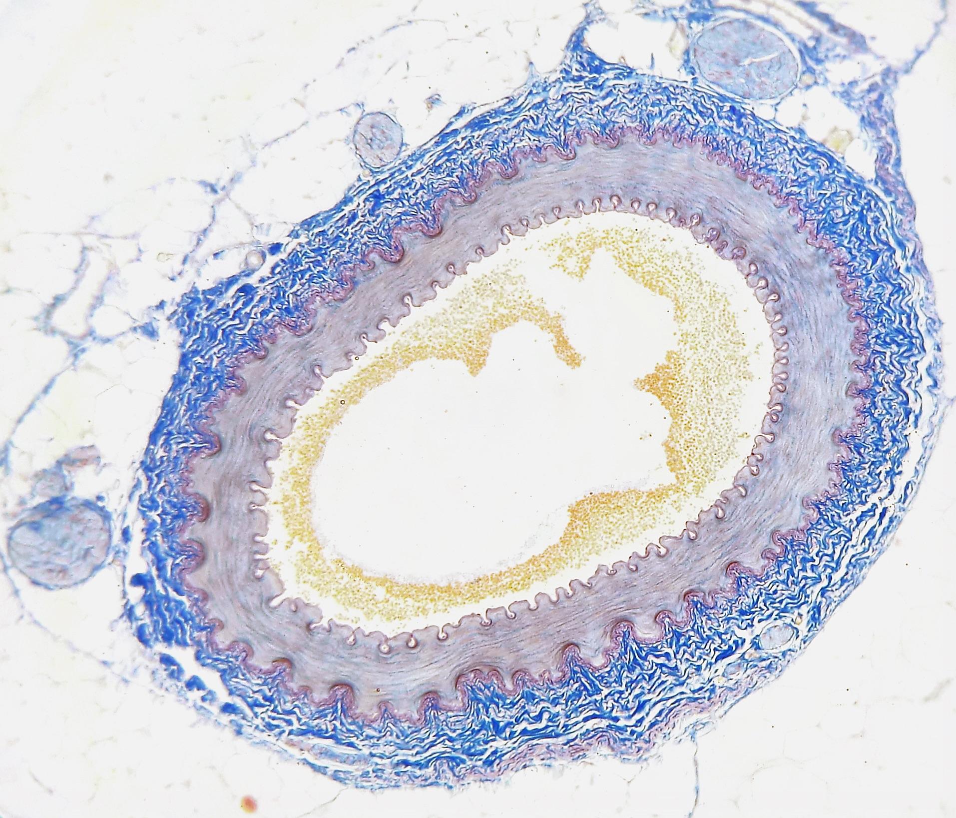 Querschnitt einer menschlichen Arterie mit Verkalkungen (gelb). © Wikimedia Commons