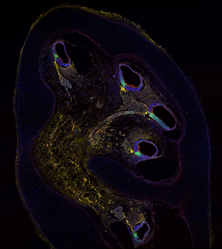 """Human cochlea at 10 weeks of development immunostained for markers to identify hair cell progenitors: """"CD271"""" in yellow, """"p27"""" in green.  © Marta Roccio and Michael Perny, Inner Ear Research Laboratory, Department for BioMedical Research (DBMR), University of Bern"""