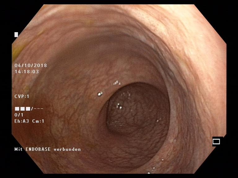Endoskopische Aufnahme einer gesunden Dickdarmschleimhaut.  © Pascal Juillerat, Universität Bern