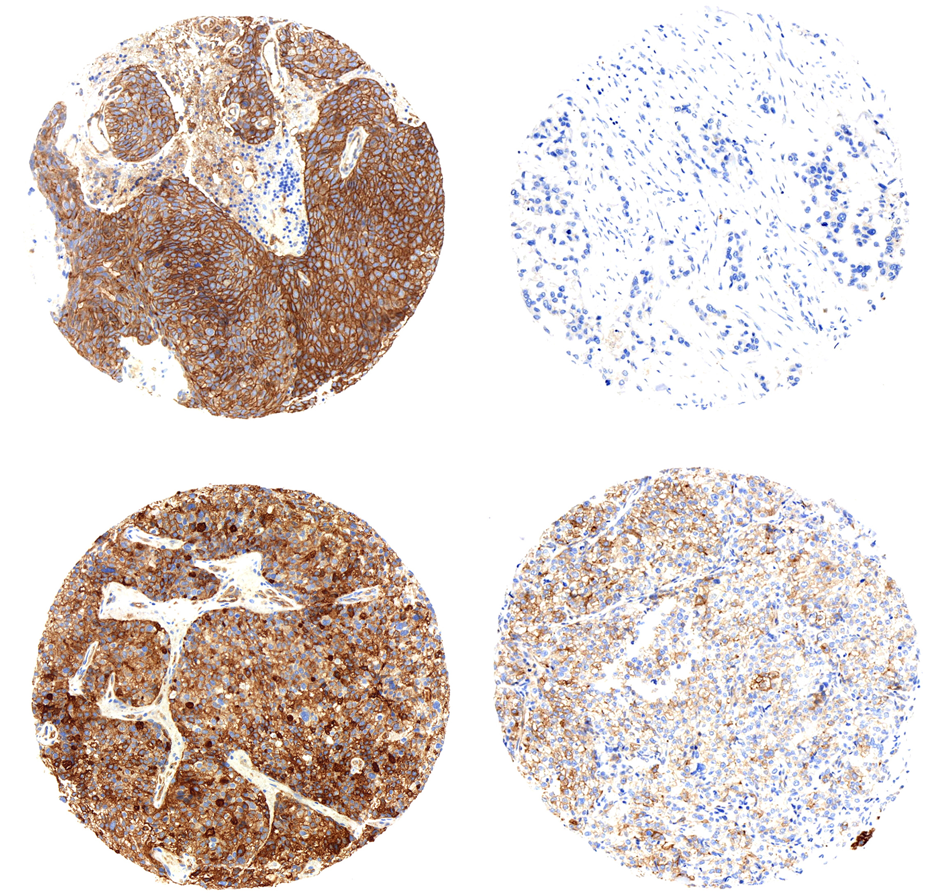 ngTMA® technology: Immunostaining of pGluN2B (Y1252) in brain metastases (Left column) and immunostaining of pGluN2B (Y1252) in breast primary tumor (Right column). Translational Research Unit. Institute of Pathology – University of Bern.