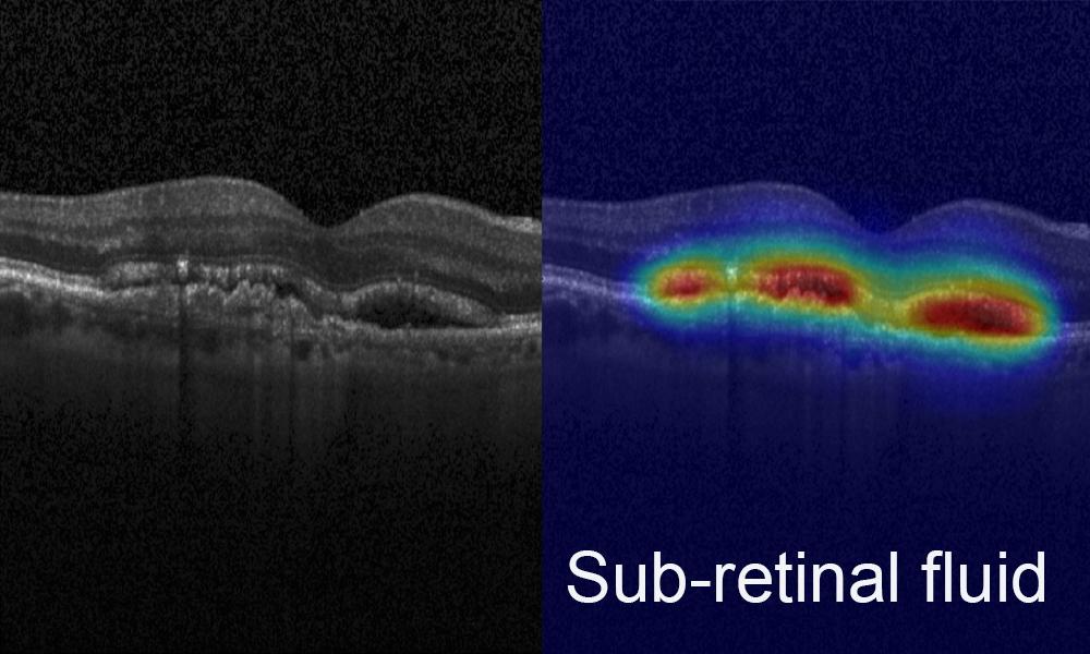 KI in der Bild-Analyse: Links ist das Ergebnis des OCT zu sehen, rechts ist erkennbar, in welchen Regionen das KI-Netzwerk Biomarker erkannt und identifiziert hat. Die Farben bezeichnen die Gewichtung der Zuordnung zu einem bestimmten Biomarker.